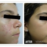BEFORE_AFTER_-_ACNE1