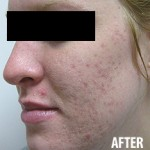 Acne grade 4 after treatment with Vivant Benzoyl Peroxyde gel